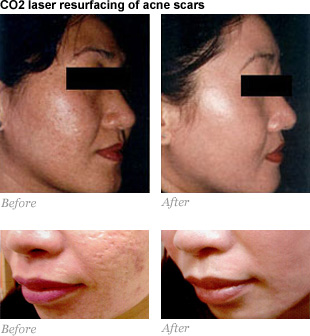 Acne Scar Chickenpox Scar Correction Prices